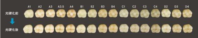 オム二クロマ使用例:天然歯の幅広い色調に一本で対応可能