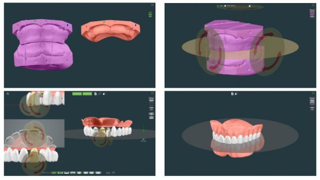 DENTCAのデザインシステムを使ったデンチャー(入れ歯)のデザイン