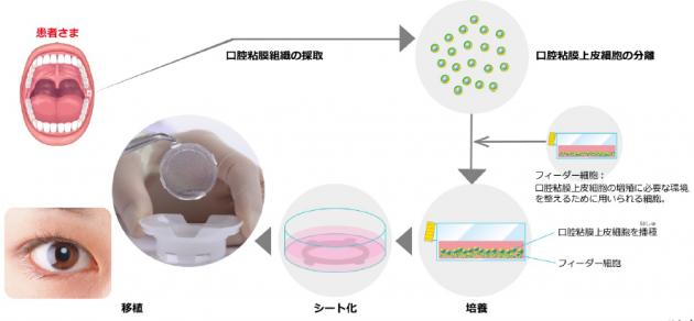 自家培養口腔粘膜上皮「オキュラル」の移植
